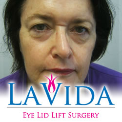 eye-lid-lift-surgery