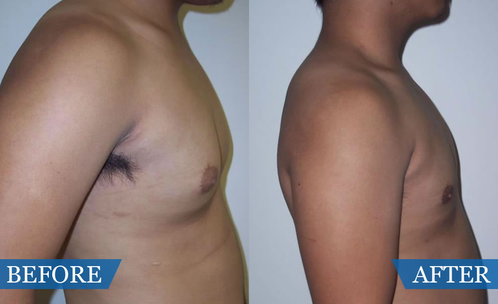 a study of liposuction Study lead eric swanson, md, a plastic surgeon in leawood, kan, also reports that when you double up, combining liposuction with abdominoplasty (tummy tuck), the end result (physical and psychological) only gets better.